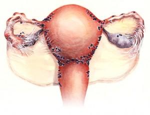 Localizarile implanturilor endometriozice